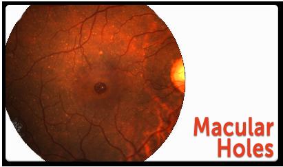 macular-holes.png
