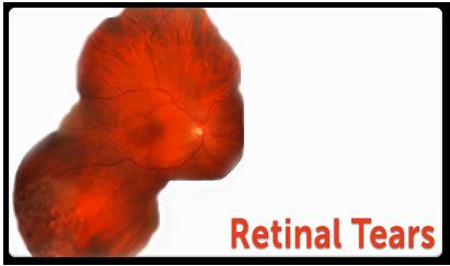 retinal-tears.png