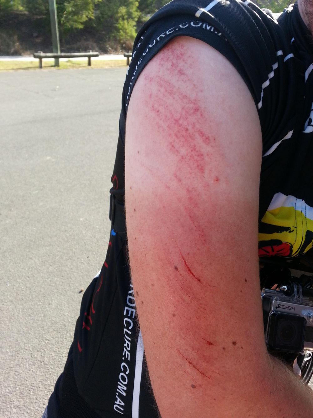 MTB Crash Arm.jpg
