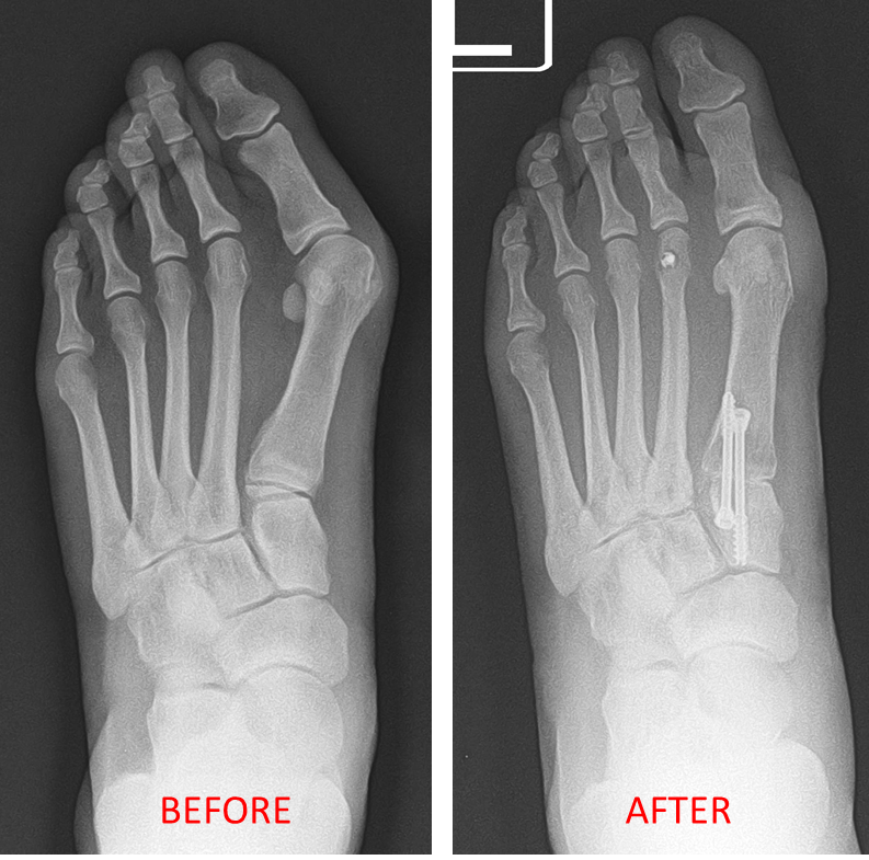 X-Rays of surgical correction of severe Bunion deformity