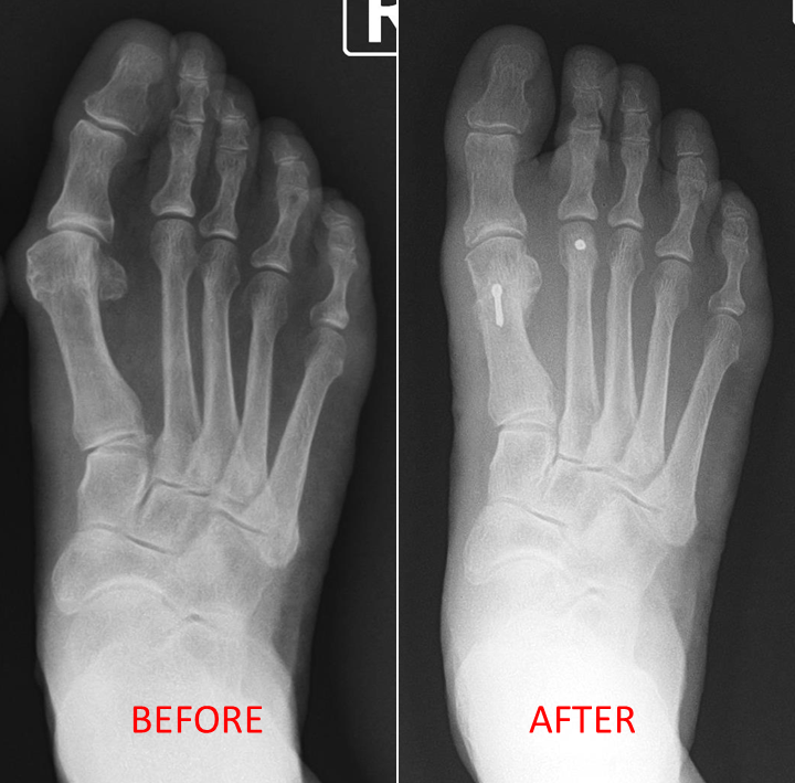 Bunion Right Foot