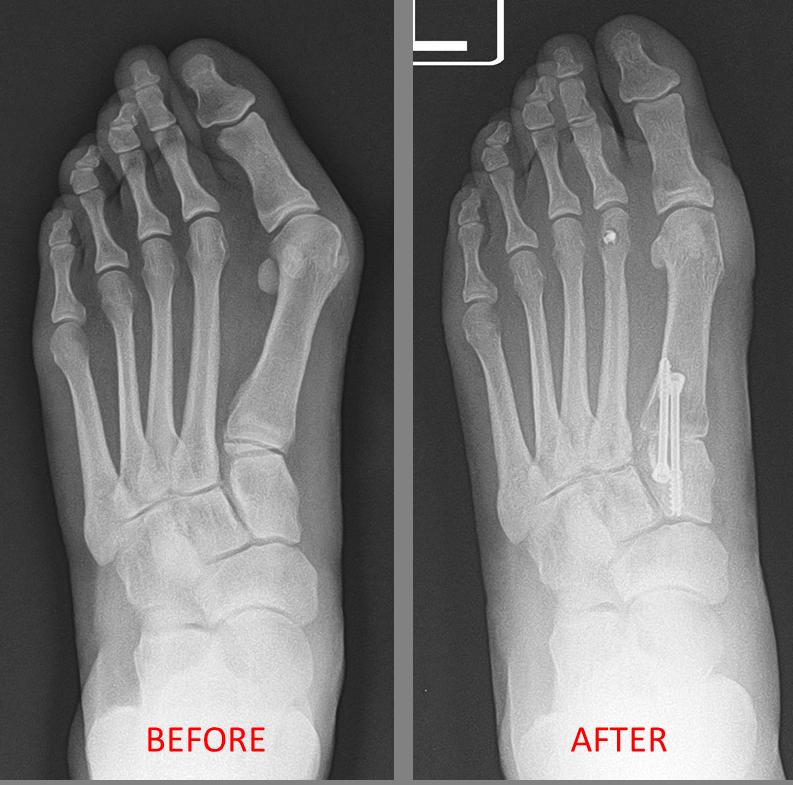 What is an ingrown toenail look like