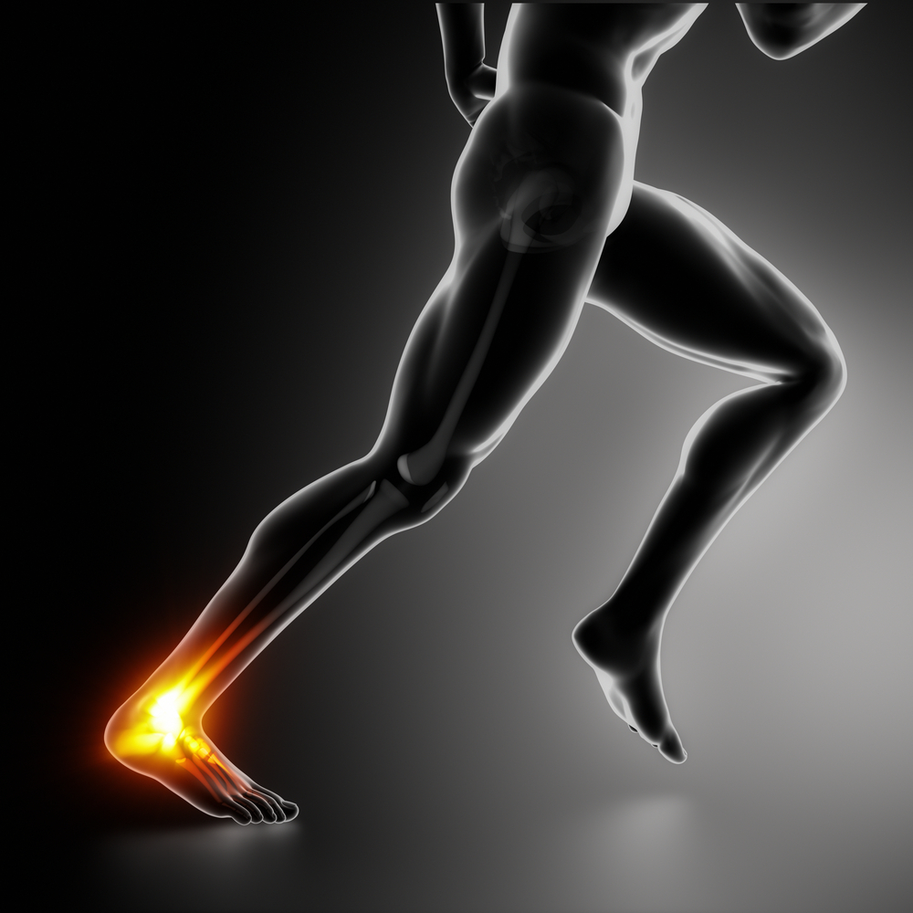 Heel Pain Information