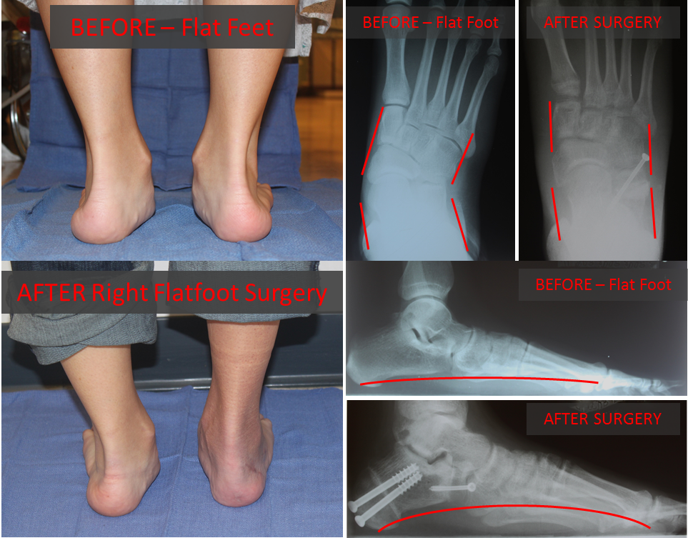 17 y.o. female with Pediatric Flatfoot Deformity Before & After Reconstructive Surgery of her Right Foot.