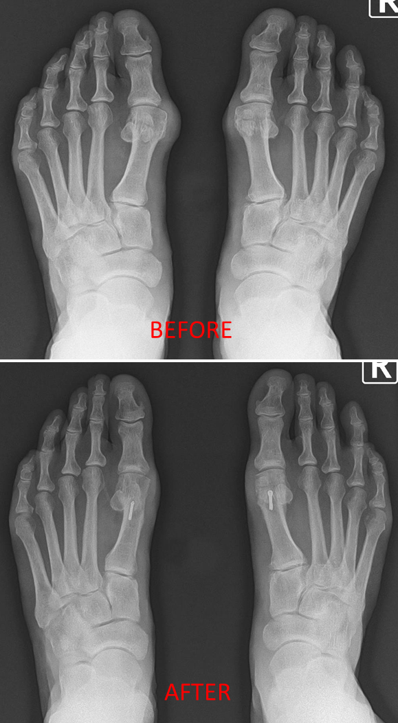 Bilateral Bunion 1.png