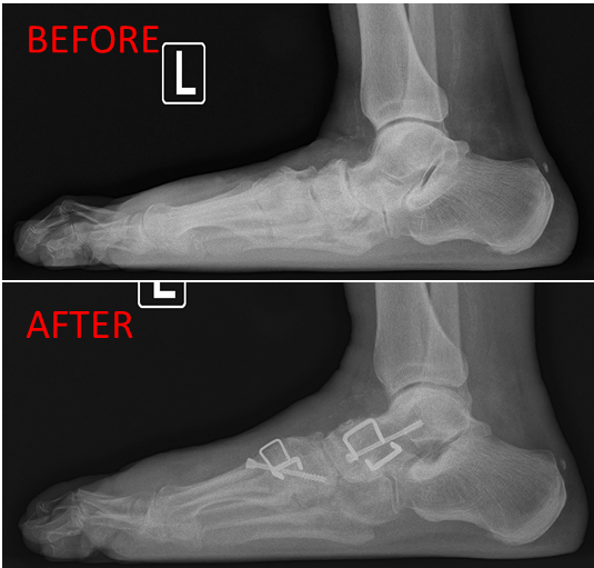 Flatfoot Lateral 1.png