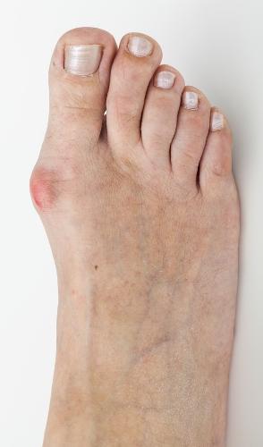 Bunion Deformity of Right Foot