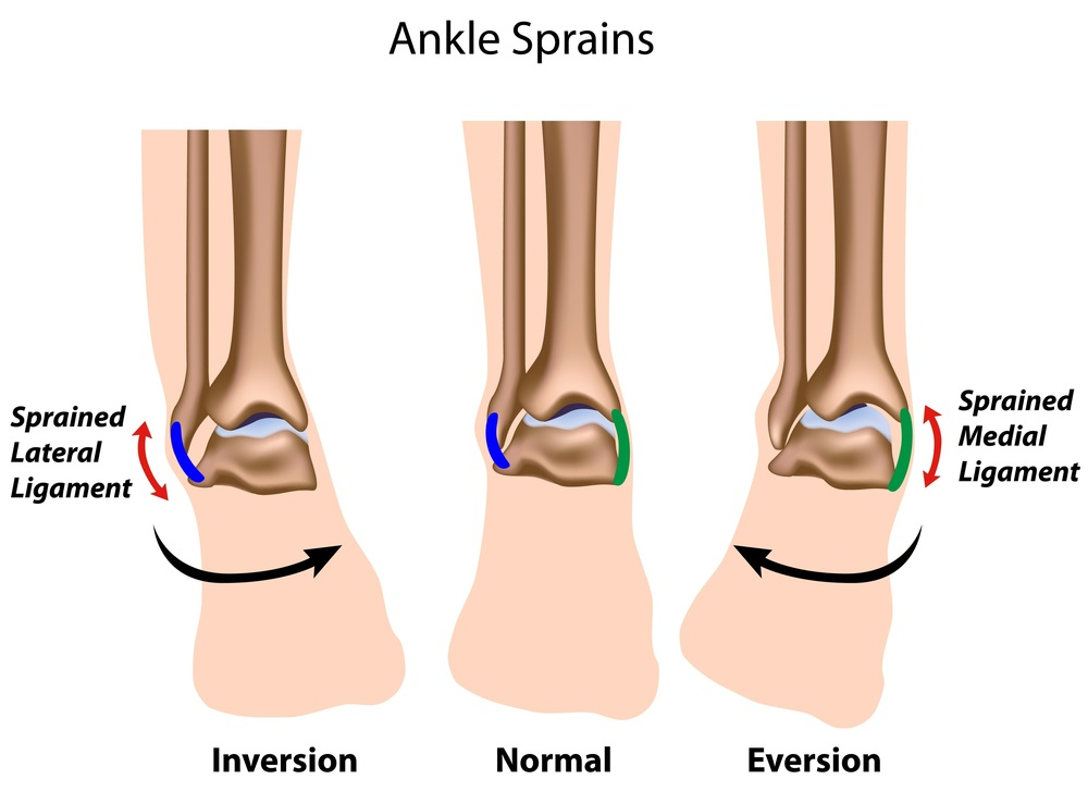 Twisting Ankle Sprain Injury