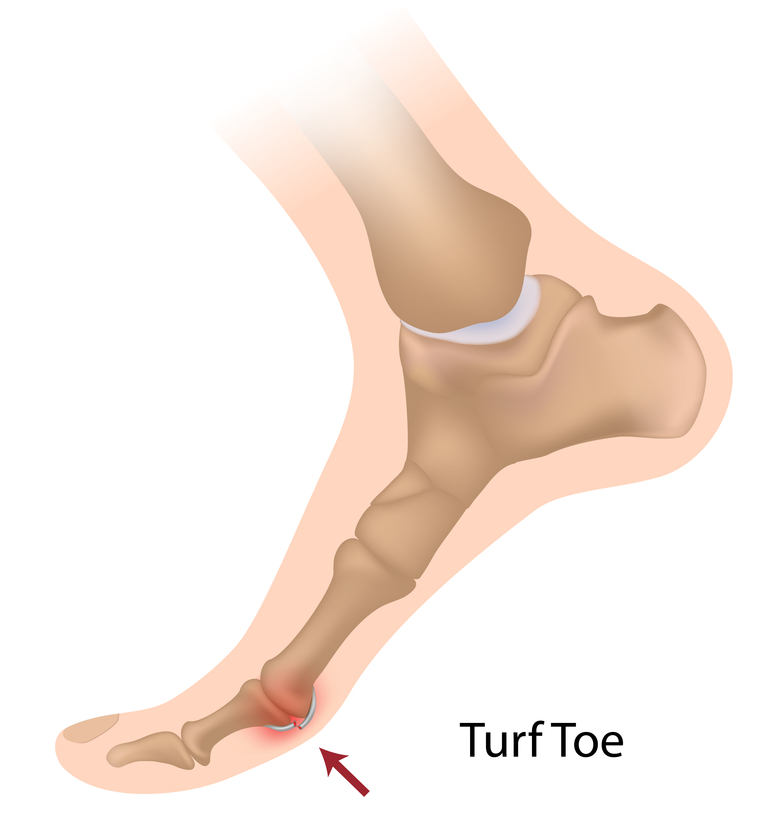 Turf Toe Injury of Sesamoid bone in foot