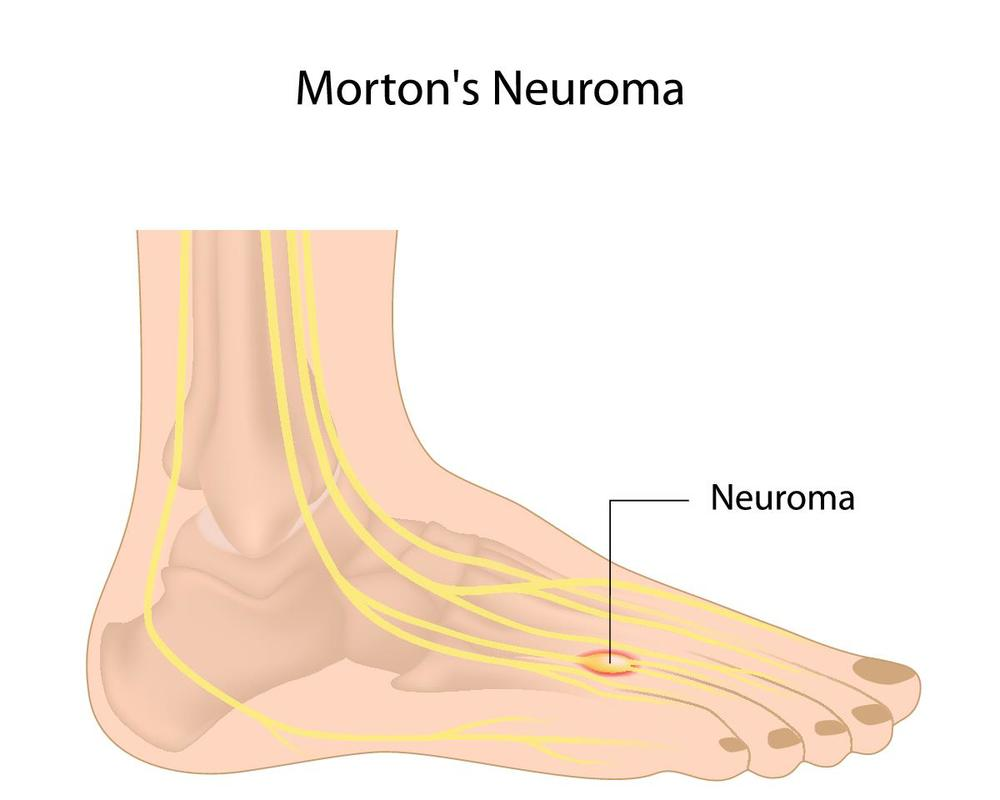 Morton's Neuroma Pain in Ball of Foot