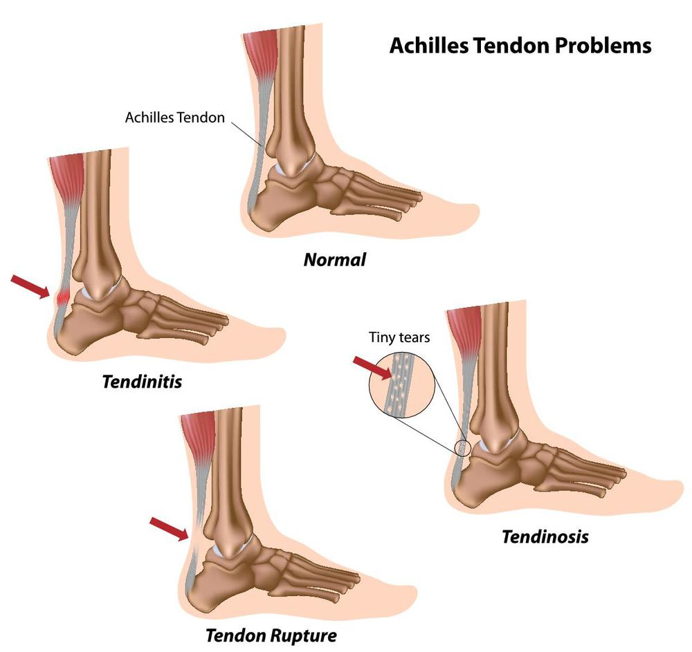Achilles Tendinitis and Rupture
