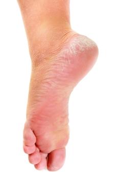 Dry skin on foot