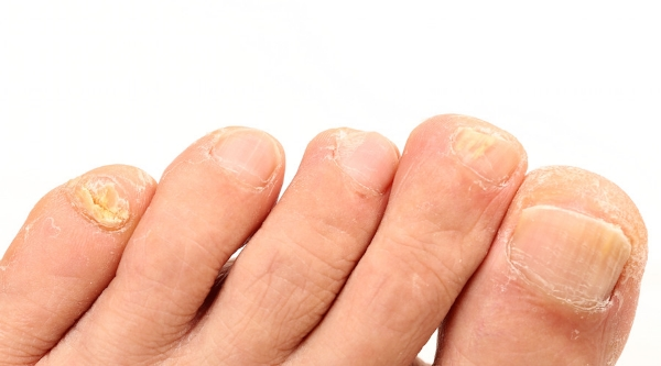 What Caused Your Brittle Toenails
