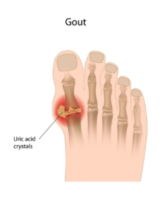 Build up of uric acid crystals in big toe joint