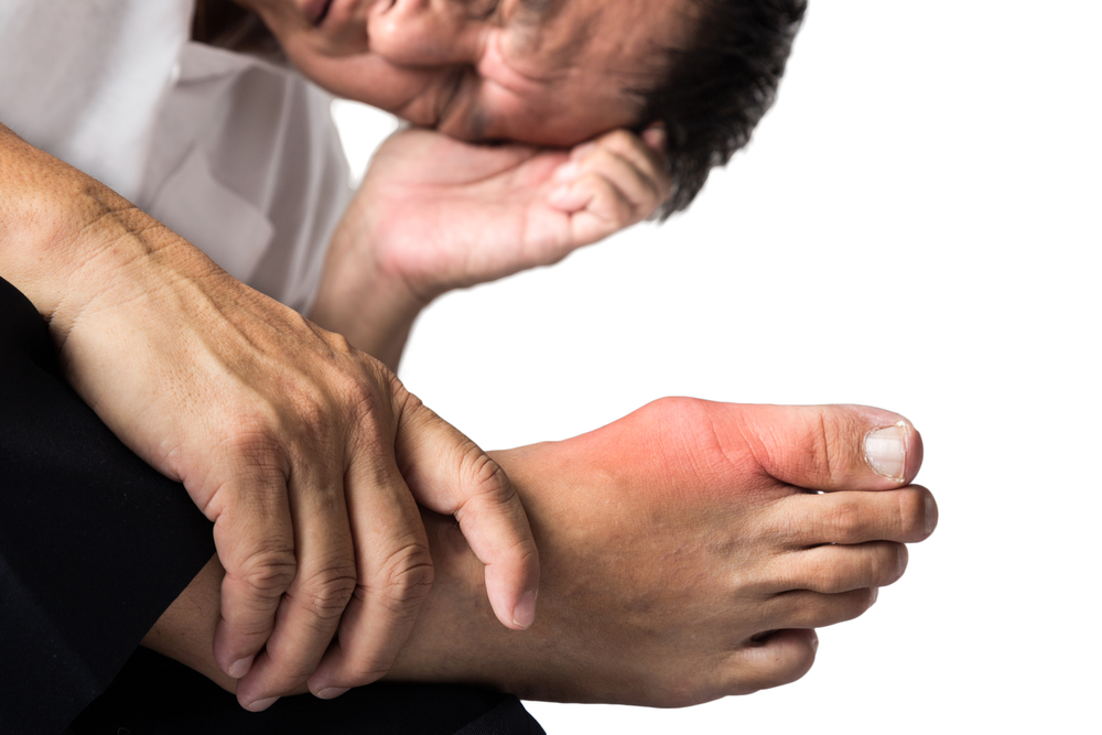 Painful gout