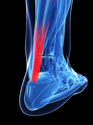 Stressed Achilles tendon