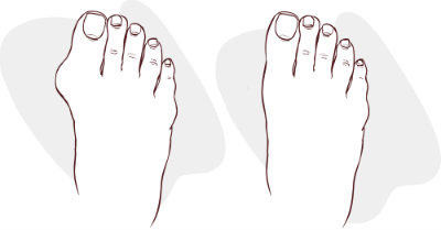 Foot with bunion compared to foot without bunion
