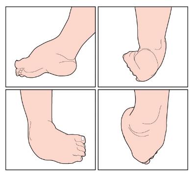 Clubfoot Illustration