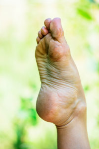 Foot with Calluses