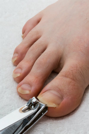 Trimming Toenails
