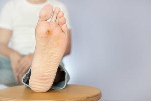 Wart on Foot