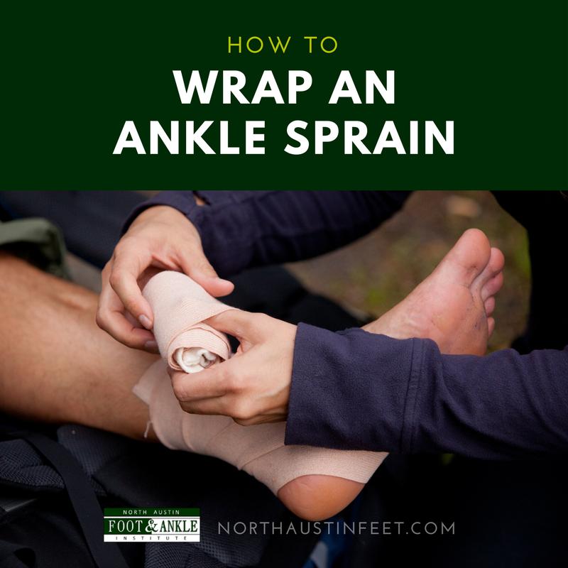 How to Wrap an Ankle Sprain