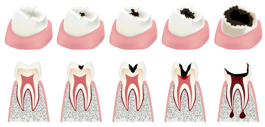 what-causes-cavities-diagram.jpg