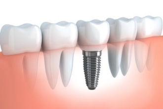 dental-implant-diagram.jpg