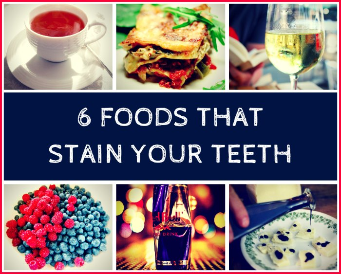 6 Foods That Stain Your Teeth (And What to Eat Instead)
