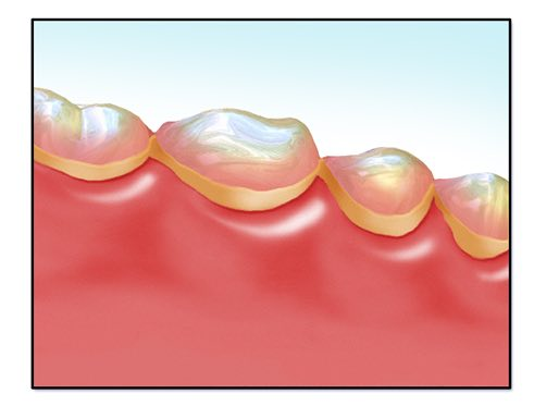 Gingivitis caused by built-up plaque