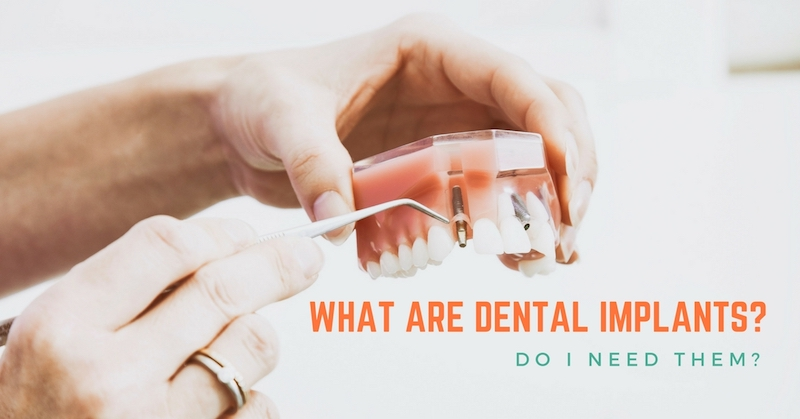 What-Are-Dental-Implants-Do-I-Need-Them.jpg