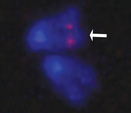 Fluorescent In Situ Hybridization indicating incorporation of a reporter transgene.