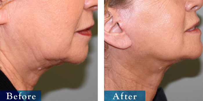 edmonton-cosmetic-surgery-facelift-9.jpg