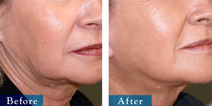 edmonton-cosmetic-surgery-facelift-10.jpg
