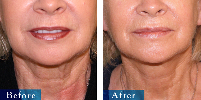 edmonton-cosmetic-surgery-facelift-11.jpg