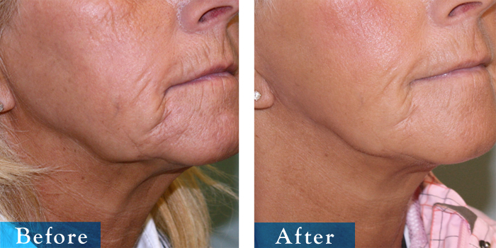 edmonton-cosmetic-surgery-facelift-13.jpg