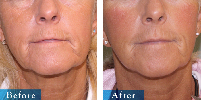 edmonton-cosmetic-surgery-facelift-14.jpg
