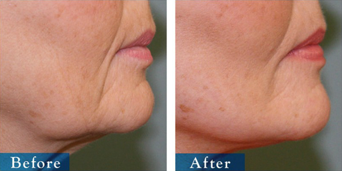 edmonton-cosmetic-surgery-facelift-3.jpg