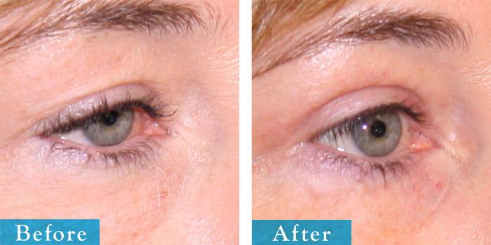 edmonton-cosmetic-surgery-blepharoplasty-9.jpg