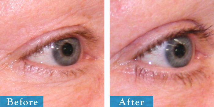 edmonton-cosmetic-surgery-blepharoplasty-10.jpg