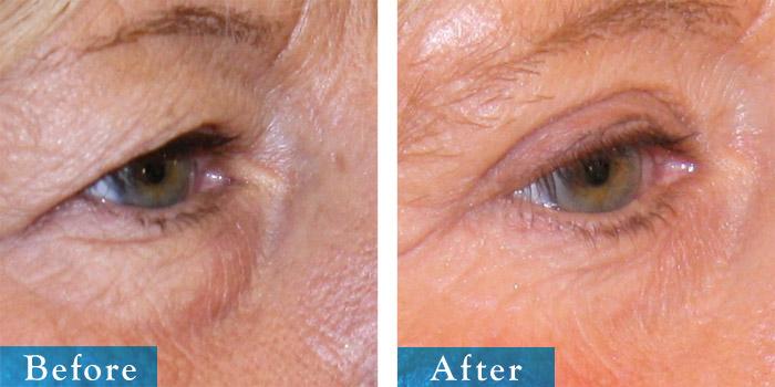 edmonton-cosmetic-surgery-blepharoplasty-11.jpg