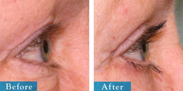 edmonton-cosmetic-surgery-blepharoplasty-15.jpg