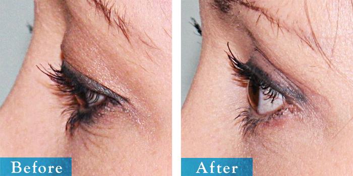 edmonton-cosmetic-surgery-blepharoplasty-1.jpg