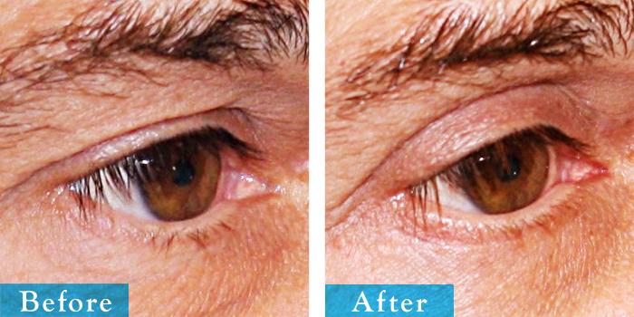 edmonton-cosmetic-surgery-blepharoplasty-3.jpg
