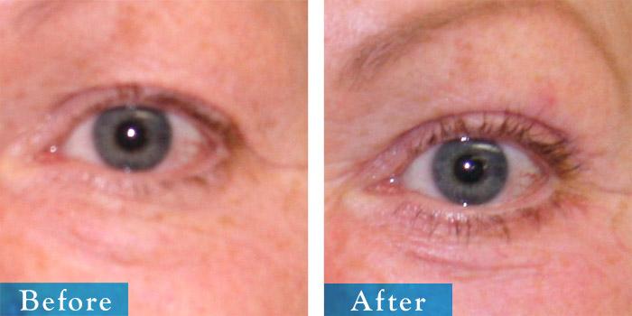 edmonton-cosmetic-surgery-blepharoplasty-5.jpg