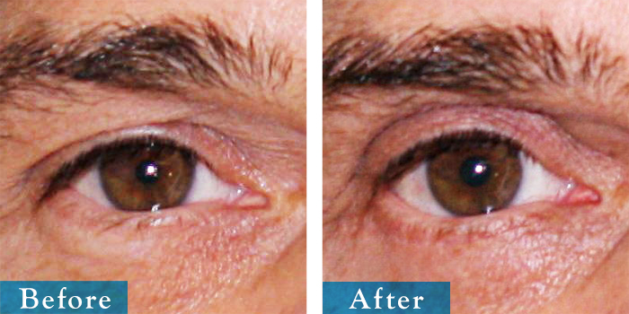 edmonton-cosmetic-surgery-blepharoplasty-4.jpg