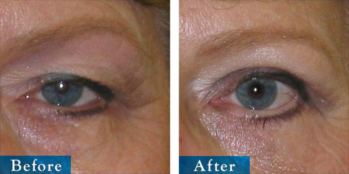 edmonton-cosmetic-surgery-blepharoplasty-6.jpg