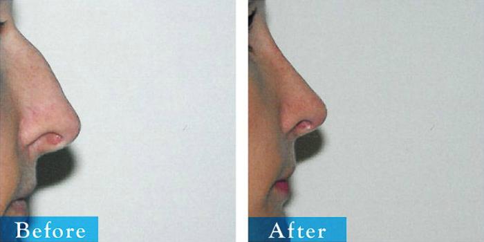 edmonton-cosmetic-surgery-rhino-16.jpg