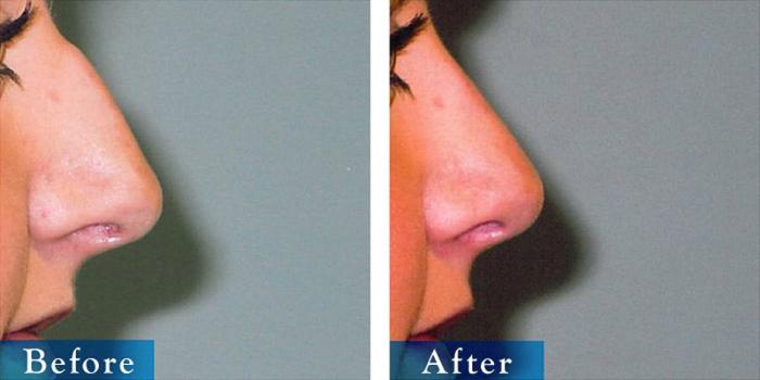 edmonton-cosmetic-surgery-rhino-18.jpg