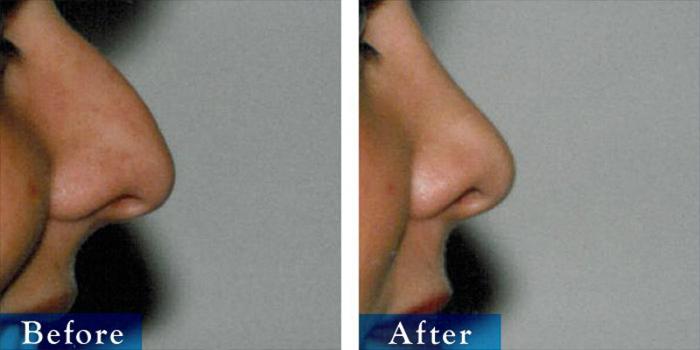 edmonton-cosmetic-surgery-rhino-21.jpg